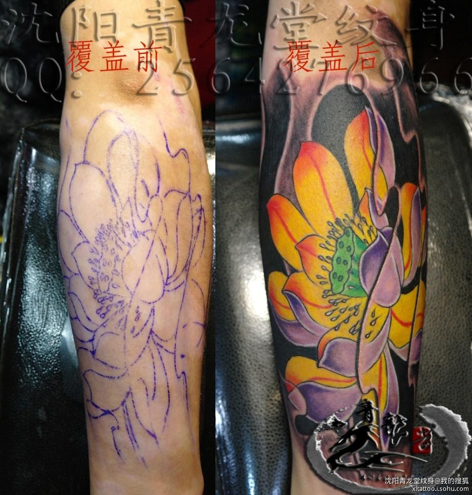 沈阳纹身; 纹身覆盖白癜风彩色荷花小臂白癜风覆盖