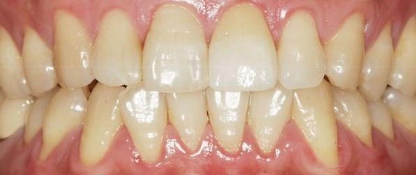 彤名超薄瓷贴面 牙齿美容修复