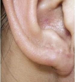 耳垂部位增生性疤痕a型肉毒毒素局部注射治療后一年圖片